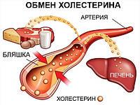 Избавление от холестерина