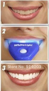 Отбеливание зубов в домашних условиях white light , фото 2