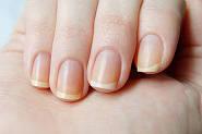 Причины желтизны ногтей
