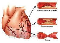 Комплекс при атеросклерозе