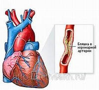 Комплекс при ишемии