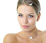 Как замедлить процесс старение кожи