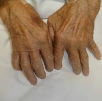 При ревматоидном артрите