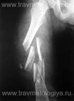 Комплекс при переломах