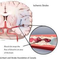 При нарушениях мозгового кровообращения
