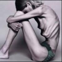 При неврогенной анорексии