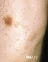 Комплекс при грибковых заболеваниях кожи