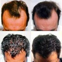 При аллопеции / выпадение волос