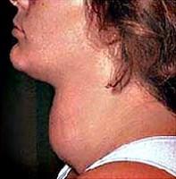 При узловом зобе (узловая гиперплазия)