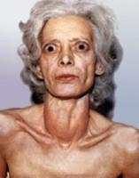 При диффузном токсическом зобе (гипертиреоз)