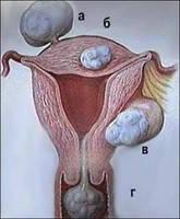 При миомах, фибромиомах