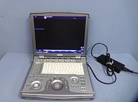 GE Logiq E цифровой портативный УЗИ сканер, фото 1