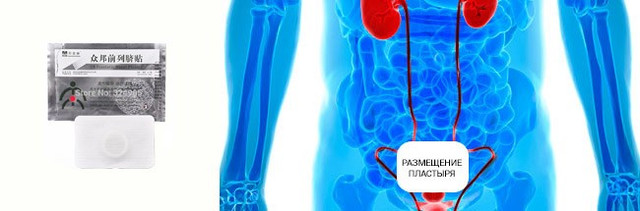 Инструкция пластыря ZB Prostatic Navel Plaster