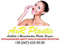 Изменение формы носа - ринопластика