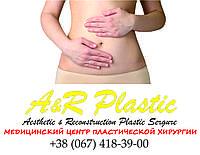 Удаление отвислого живота – абдоминопластика