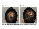 Витамины для волос для мужчин Viviscal Man, 60 таб. Сделано в Ирландии., фото 3