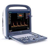 Портативный ультразвуковой сканер SonoScape S2 (1 датчик в комплекте)
