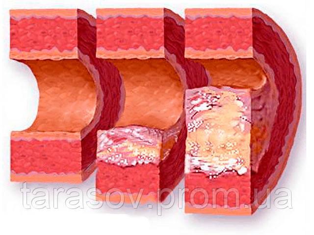Народный метод очистки организма от холестерина.