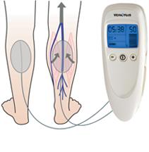 ВЕНОПЛЮС – нейромышечный электростимулятор (НМЭС), для лечения и профилактики симптомов заболеваний вен