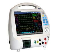 Монитор реанимационно-хирургический ЮМ-300, ЮТАС