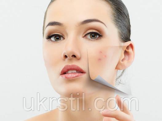 Проблемная кожа