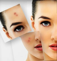 Derm Acte Acne - Уход за жирной и проблемной кожей
