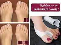 Valgus Pro — против шишек на ногах!