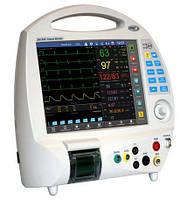 Монитор пациента ЮМ 300 - 12