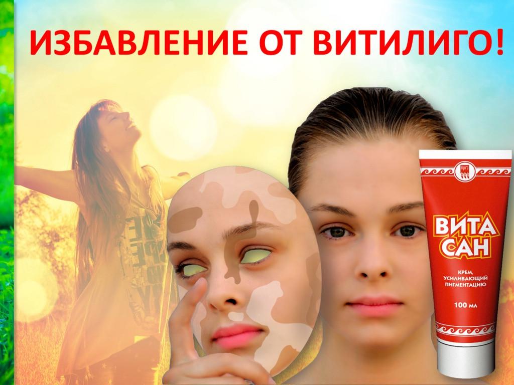 Витасан, крем  100 мл усиливающий пигментацию (витилиго, белые пятна на коже, меланин, пигментация) - Интернет-магазин «Здоровая жизнь» в Киеве