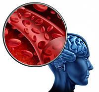 Профилактика нарушений мозгового кровообращения