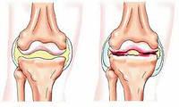 Лечение остеоартроза и метаболического синдрома