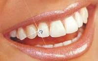 Стоматологические украшения, стразы скайсы 1,8 мм