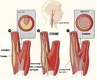 Стентирование артерий головного мозга