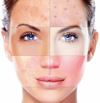 Как определить тип кожи лица и правильно подобрать косметику