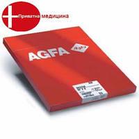 Термопленка Agfa Drystar DT2B 35x43