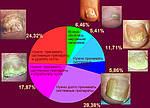 Лечение грибка ногтей и стоп препаратом Аргодерм