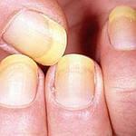 Как избавиться от грибка ногтей и ног