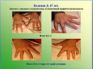 Кожные болезни, осложненные грибком, виды грибка, меры профилактики и лечение