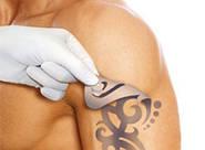 Методы лазерного удаления татуировок