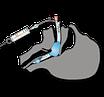 Ларингеальная трубка одноразовая LT-D VBM, фото 3