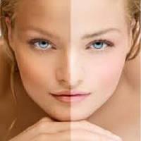 Achromaxyl™- снижает интенсивность цвета и размер возрастных пятен, 1 литр