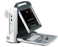 УЗ сканер ECO5 – цветной с PW-доплером.