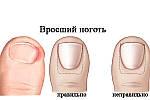 Врастание ногтя