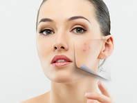 Косметология Лечение угревой болезни (акне), постакне