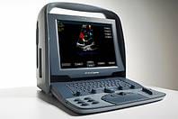Сканер ультразвуковой диагностический Siemens ACUSON Cypress, фото 1