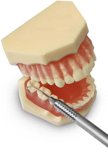 Зонди стоматологічні та пародонтологічні