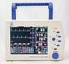 Монитор пациента прикроватный ПМП-02