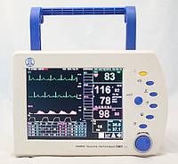 Монитор пациента прикроватный ПМП-02, фото 1