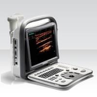 Портативная УЗИ система SonoScape А6