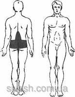 Лечение радикулита, полиневрита, вертеброгенных болевых синдромов